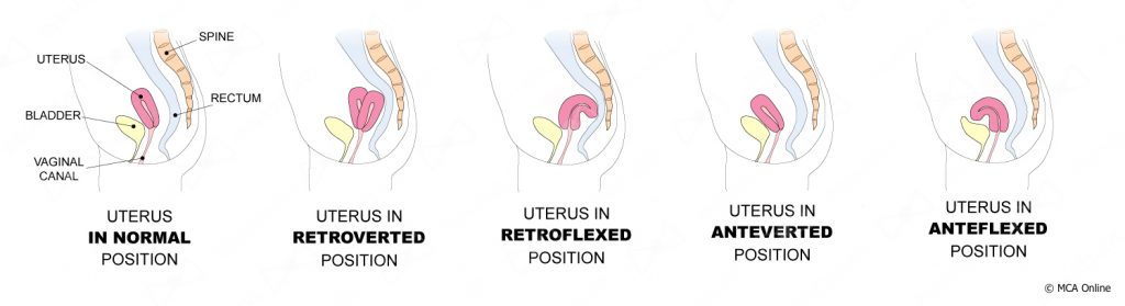 Uterus tampons tilted and Do you