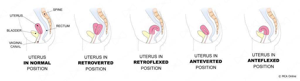 Different Uterus Positions MCA Online